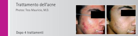 Trattamento_acne